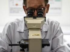 Cientistas identificam proteína que controla metástase do câncer de pele