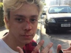 Ator é agredido no RJ: ´Para quem diz que homofobia não existe´