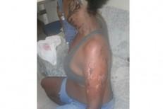 Mulher é atacada com ácido por ex-namorado após término de relação na Bahia