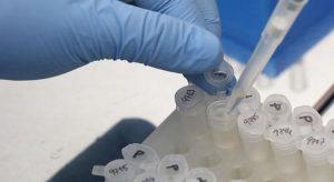 81,6% dos testes para Covid-19 foram realizados por laboratório público no Ceará