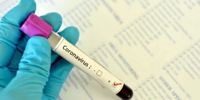 OMS alerta que não há provas de que pessoas já infectadas ficam imunes ao coronavírus