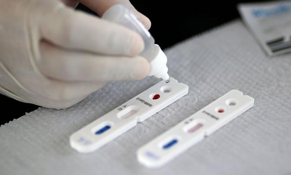 Pesquisadores desenvolvem testes rápidos para detectar coronavírus