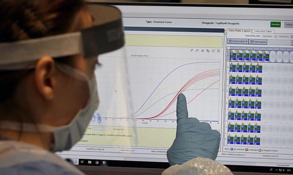 Controle do coronavírus pode levar ainda cinco anos, diz cientista-chefe da OMS