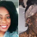 Mulher sofre reação a remédio e pele fica desfigurada