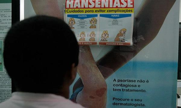 Juazeiro do Norte e outros dois municípios estão sem medicamento para tratar hanseníase