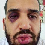 Casal de médicos do Paraná é agredido após alertar parente sobre riscos da Covid-19