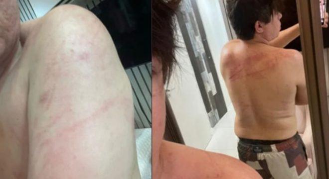"""DJ Ivis aparece ferido em fotos e Pamella Holanda diz: """"Nunca o vi assim"""""""